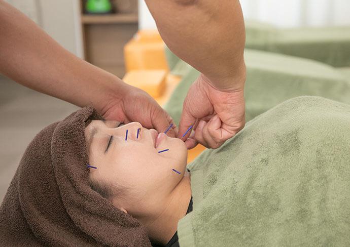 吉川中央整骨院での美容鍼施術の様子